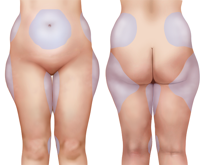 3D Model of a woman for medical purpose