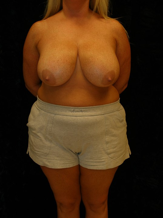Large breasts before reduction surgery