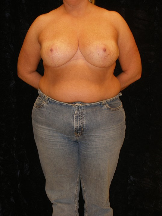 Small breasts after reduction surgery