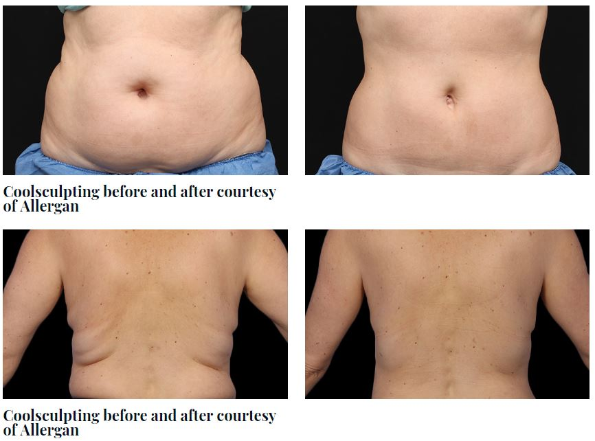 Before and After CoolSculpting Image