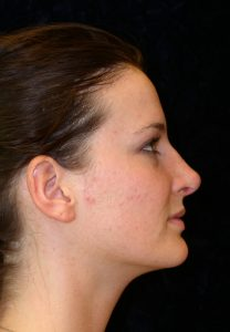 after rhinoplasty side view