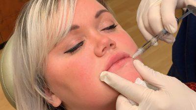Lower Lip Augmentation