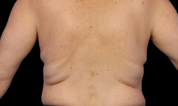 Before coolsculpting flanks