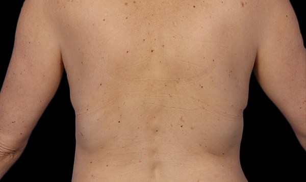 After coolsculpting flanks
