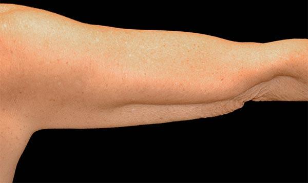 After coolsculpting arm