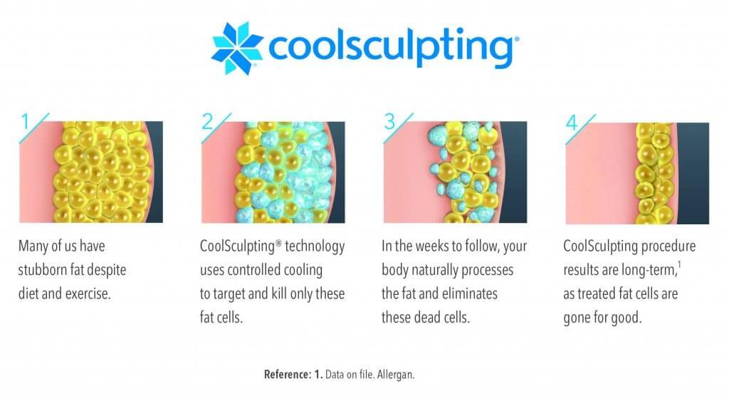 7-Illustration-how-coolsculpting-works-Medium