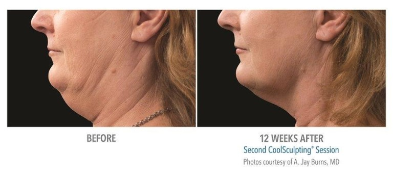 coolsculpting neck before and after