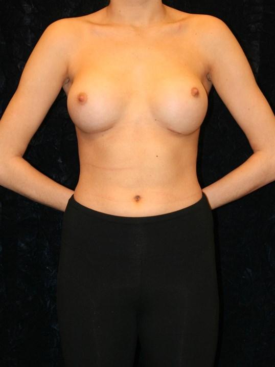 After Breast Augmentation NOVA