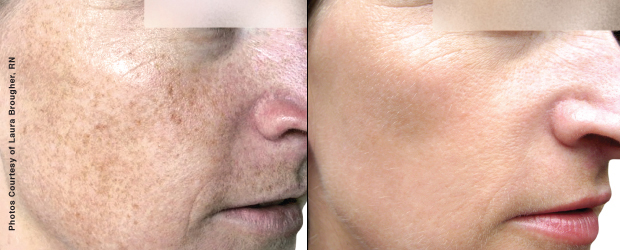 Before-and-After-BBL-Treatment
