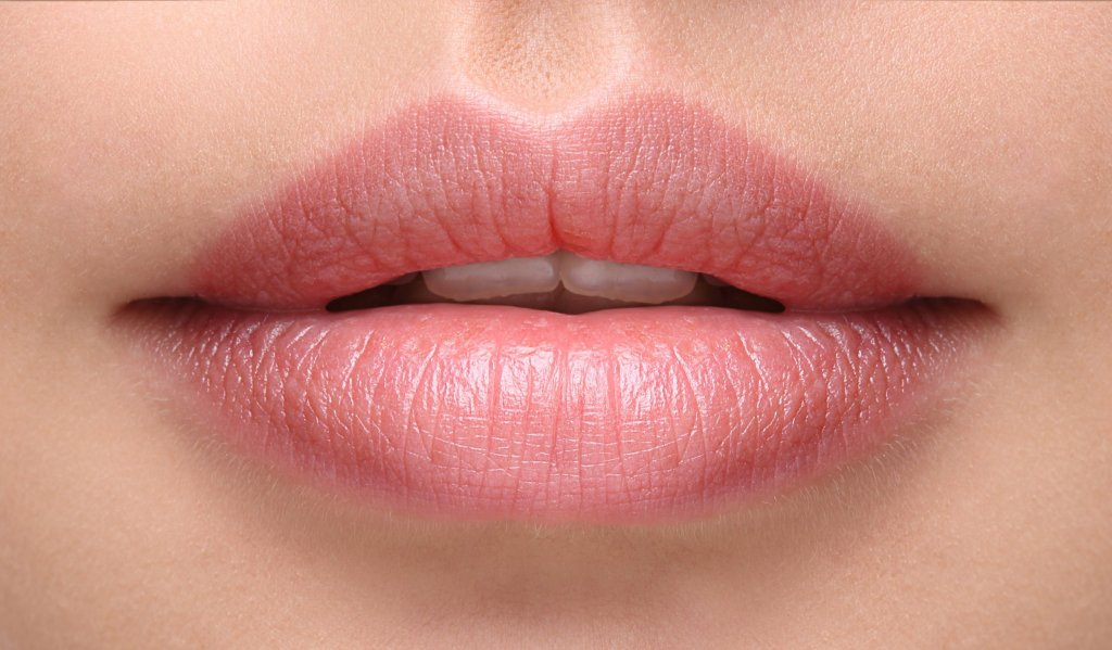 After Lip Filler - Sexy plump lips after filler injection