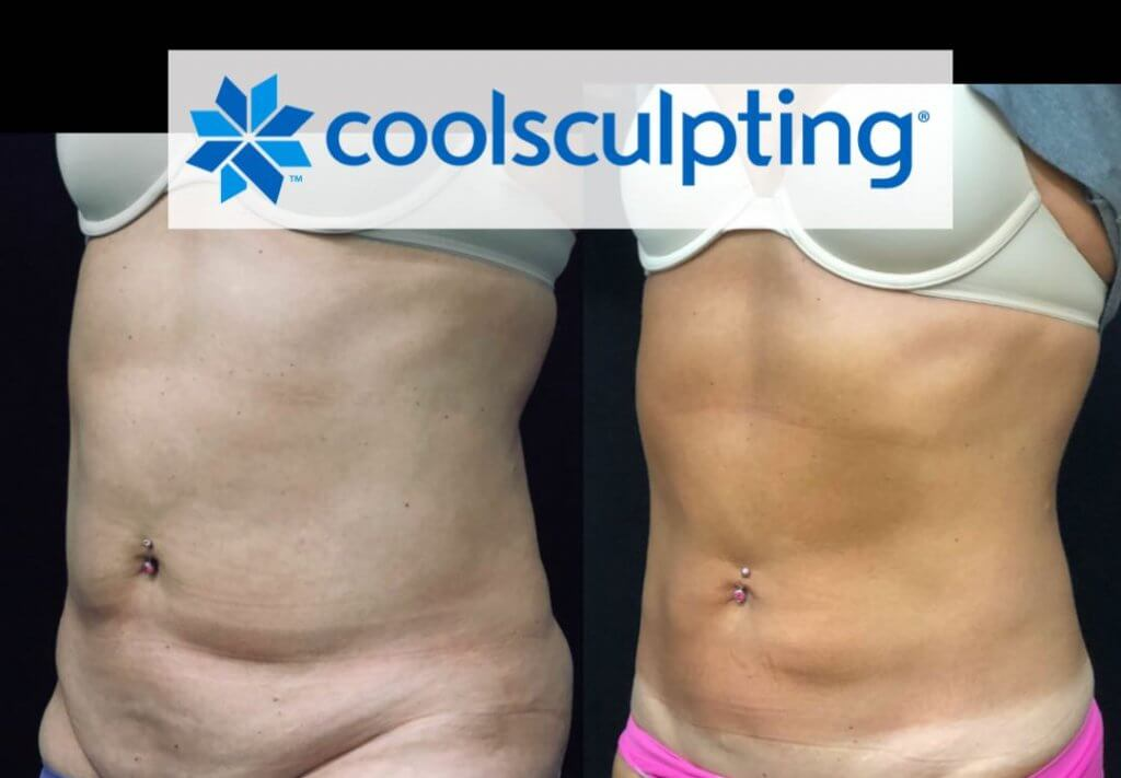Before After 9 CoolSculpting Treatments