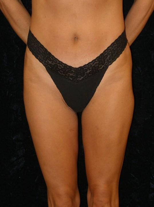 After Liposuction Waist Thighs