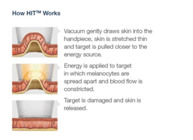 Lumenis How it Works