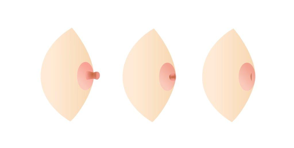 What Inverted Nipple Looks Like